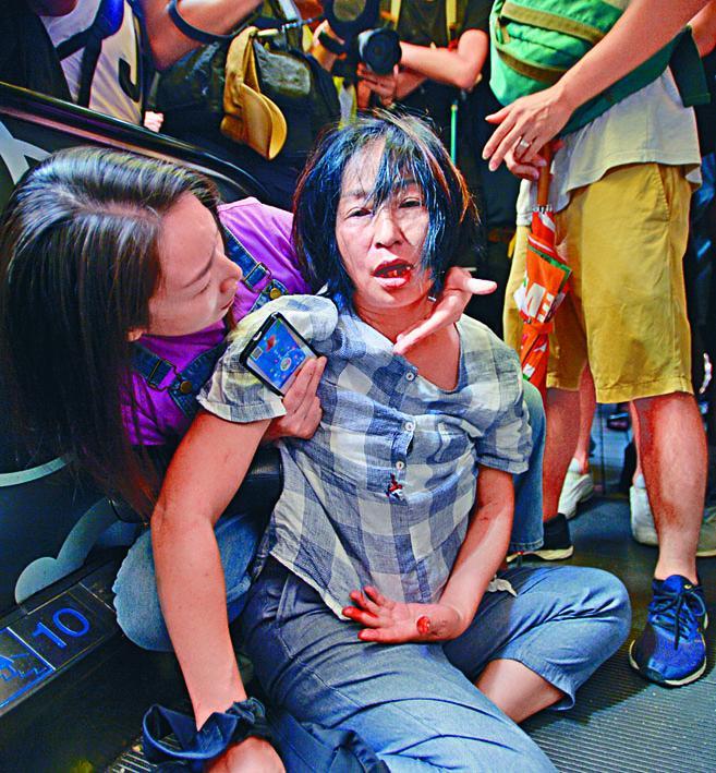 蘇婦當日在淘大商場遇襲滾下樓梯受傷甩了三顆牙。