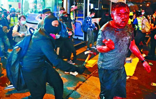 旺角有黑衣人揮槌「私了」已滿面披血的中年漢。